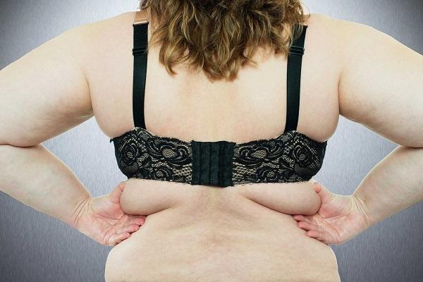 Phương pháp điều trị các loại mỡ thừa cứng đầu nhất-4