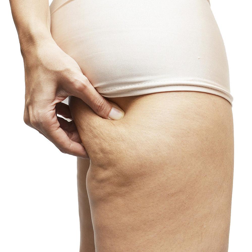 Phương pháp điều trị các loại mỡ thừa cứng đầu nhất-7