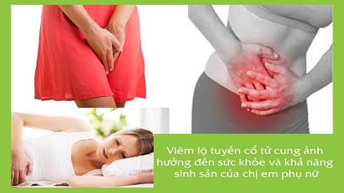 Dấu hiệu viêm lộ tuyến cổ tử cung, biến chứng và cách điều trị