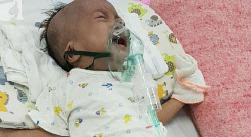 Tiếng khóc xé lòng của bé gái 14 tháng tuổi bị xơ phổi nặng, chỉ vỏn vẹn 5kg bên người mẹ mắc bệnh động kinh