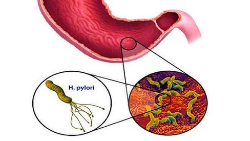 Tất tần tật các triệu chứng nhiễm vi khuẩn hp trong dạ dày