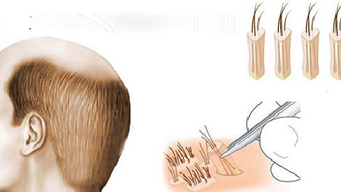 """Phương pháp cấy tóc sinh học liệu """"sống"""" được bao lâu?"""