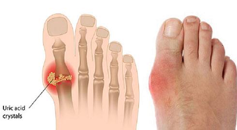 Chữa bệnh gout bằng Đông y: Hiệu quả và dễ thực hiện