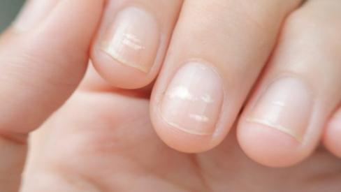 Xuất hiện đốm trắng ở móng tay của trẻ bạn cần bổ sung ngay các dưỡng chất sau