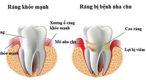 Viêm nha chu - Coi chừng mất răng…