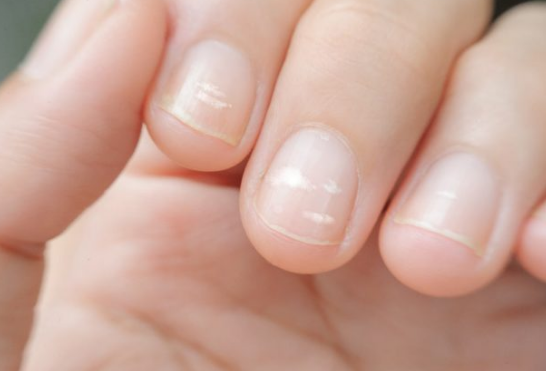 Xuất hiện đốm trắng ở móng tay của trẻ bạn cần bổ sung ngay các dưỡng chất sau-1