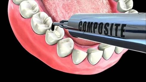 Có nên đi hàn răng sâu và liệu kết quả giữ được trong bao lâu?