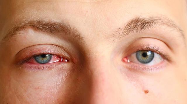Những bệnh có nguy cơ mắc vào mùa thu-2