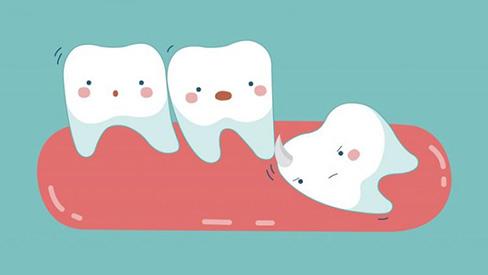 Tất tần tật về răng khôn mà bạn không nên bỏ qua