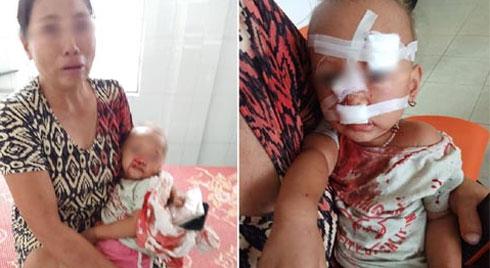 NÓNG: Bé gái 2 tuổi mặt mũi đầy máu được mẹ bế đi cấp cứu, nghi do bố ruột bạo hành