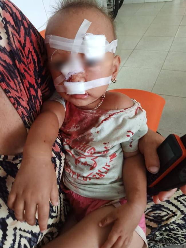 NÓNG: Bé gái 2 tuổi mặt mũi đầy máu được mẹ bế đi cấp cứu, nghi do bố ruột bạo hành-5