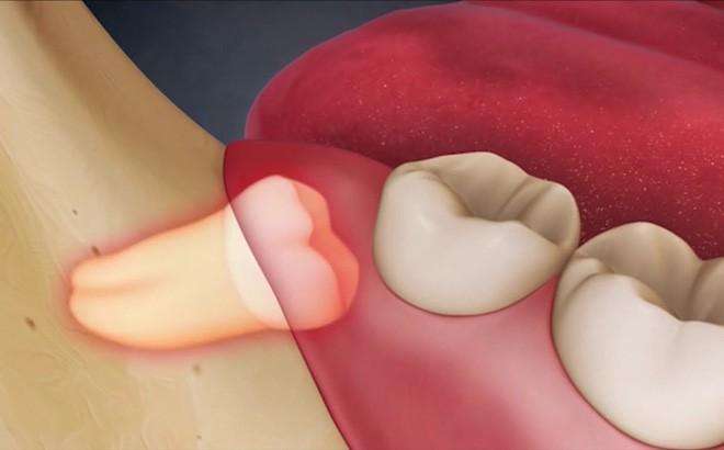 Tất tần tật về răng khôn mà bạn không nên bỏ qua-1