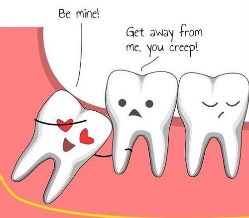 Tất tần tật về răng khôn mà bạn không nên bỏ qua-3