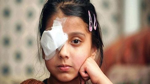 Hậu phẫu mổ mắt cần làm gì để nhanh hồi phục