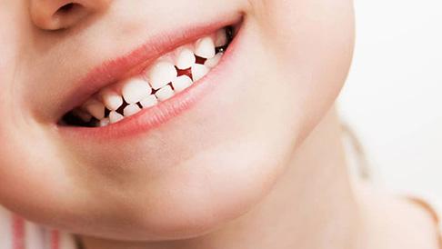 Nhổ răng sữa còn chân răng : Nguyên nhân và biện pháp xử lý