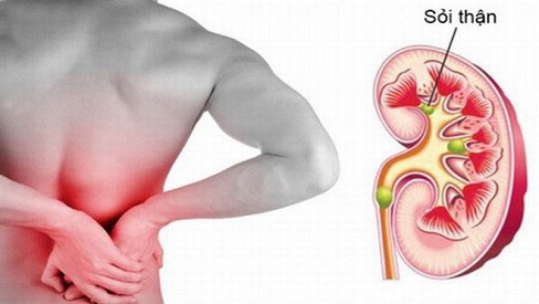 Bệnh sỏi thận có nguy hiểm không? Triệu chứng và các loại sỏi thận