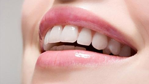 Cải thiện răng ố vàng ngay tại nhà với nguyên liệu tự nhiên
