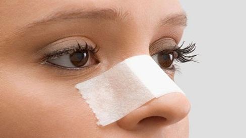 Phương pháp làm đẹp nâng mũi cấu trúc và những câu hỏi thường gặp