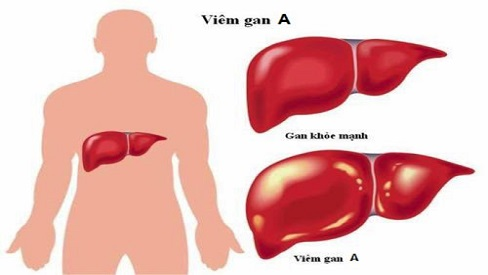 Bệnh viêm gan A lây truyền qua đường nào? Cách điều trị và ngăn ngừa bệnh