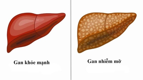 Những bài thuốc dân gian chữa bệnh gan nhiễm mỡ tại nhà cực kỳ hiệu quả