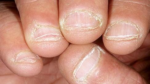 Bệnh vảy nến ở móng tay: Nguyên nhân, triệu chứng và cách điều trị hiệu quả nhất