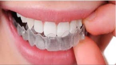 Niềng răng trong suốt công nghệ niềng răng mới nhất hiện nay