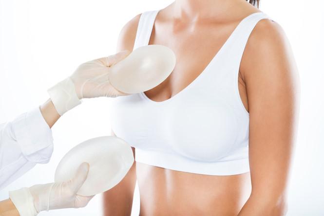 Bác sĩ bệnh viện Xanh Pôn chia sẻ: Khi nào thì nên nâng ngực, những ai nên và ai không nên nâng ngực?-2