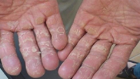 Bệnh á sừng là gì? Nguyên nhân và cách chữa bệnh tại nhà hiệu quả