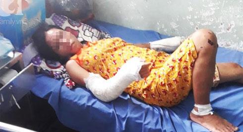 Nghi án vợ đang mang thai 7 tháng bị chồng hành hạ, đánh đập nhiều lần đến hỏng mắt, người chi chít vết thương