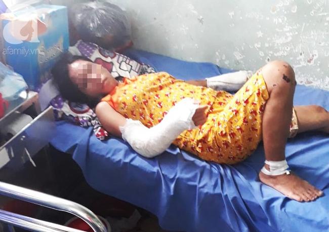 Nghi án vợ đang mang thai 7 tháng bị chồng hành hạ, đánh đập nhiều lần đến hỏng mắt, người chi chít vết thương-1