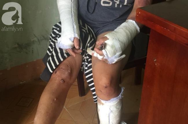 Nghi án vợ đang mang thai 7 tháng bị chồng hành hạ, đánh đập nhiều lần đến hỏng mắt, người chi chít vết thương-3