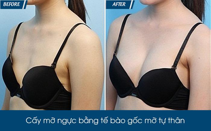 Nâng ngực bằng mỡ tự thân - Phương pháp làm đẹp không phẫu thuật ít rủi ro-5