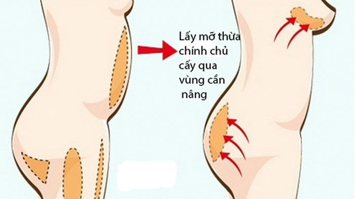 Nâng ngực bằng mỡ tự thân - Phương pháp làm đẹp không phẫu thuật ít rủi ro-1