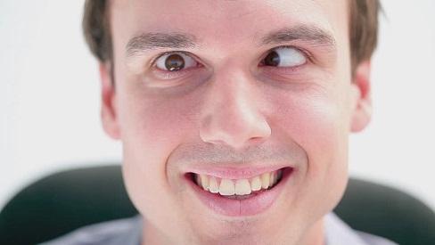 Nguyên nhân gây lác mắt và cách điều trị hiệu quả
