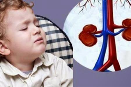 Bệnh sỏi thận ở trẻ em: dấu hiệu, nguyên nhân và cách phòng tránh-1