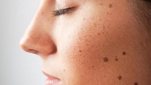 Dấu hiệu và cách điều trị bệnh ung thư da