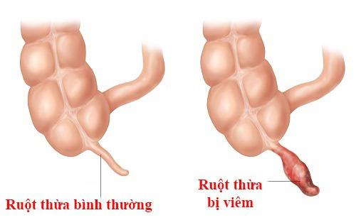 Nhận biết các dấu hiệu khi bị đau ruột thừa và cách điều trị hiệu quả-3