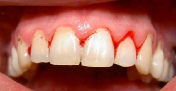 Nguyên nhân gây đau răng và cách phòng tránh-2