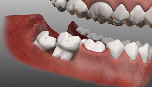 Nguyên nhân gây đau răng và cách phòng tránh-3