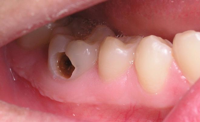 Nguyên nhân gây đau răng và cách phòng tránh-1