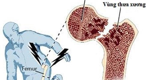 Tránh nguy cơ gãy xương vùng khớp háng ở người cao tuổi