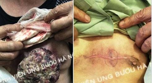 Chữa ung thư da bằng thuốc nam, khối u bốc mùi, sùi loét thành cục lớn trước ngực
