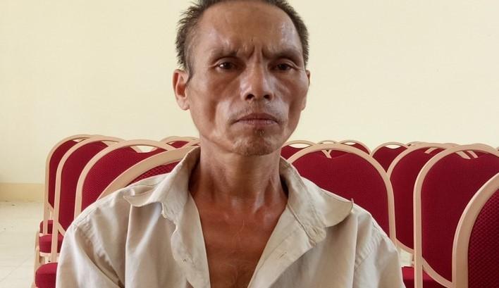 Bé trai bị chú họ dùng dao chém đứt lìa bàn tay: Mắt trái đã bị hỏng hoàn toàn-2