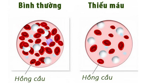 Bệnh thiếu máu là gì? Triệu chứng, nguyên nhân và cách chữa bệnh hiệu quả