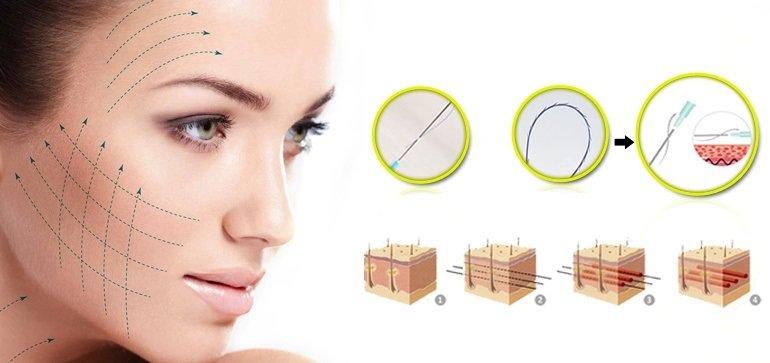 Phương pháp căng da mặt và cách chăm sóc sau hậu phẫu-1