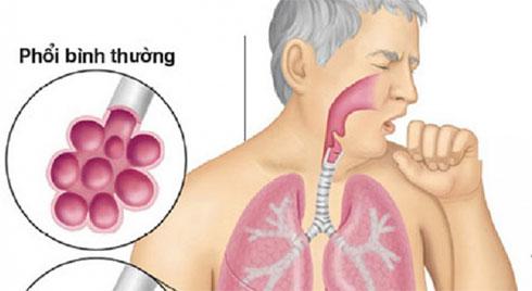 Nấm phổi – căn bệnh nguy hiểm ít người biết