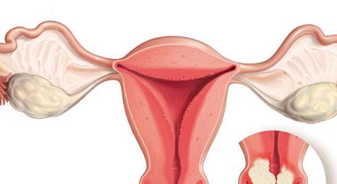 Ung thư cổ tử cung và các triệu chứng thường gặp