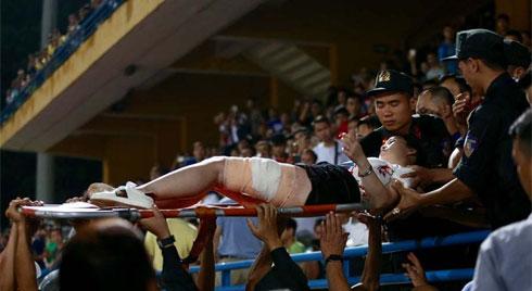 Vụ cổ động viên nữ trọng thương do trúng pháo sáng: Công an triệu tập 14 người quê ở Nam Định để điều tra