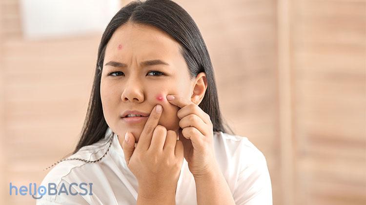 Nguyên nhân gây mụn mủ và cách điều trị tại nhà hiệu quả-3