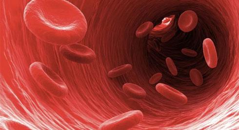 Nhiễm trùng máu: Nguyên nhân và triệu chứng